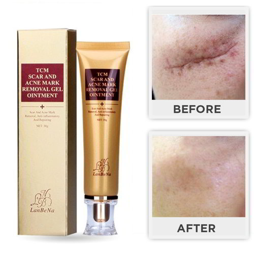 Lanbena TCM Scar and Acne Mark Removal Skin Repair Face Cream